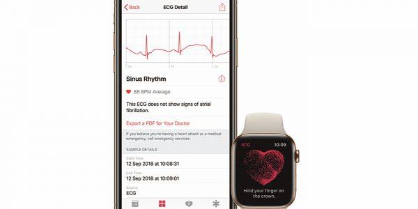 Viktig oppdatering til Apple Watch